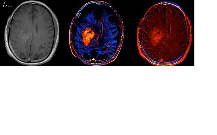 IB Neuro